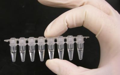 VENTAJAS DEL USO DE LA TÉCNICA PCR PARA LA LIBERACION DE LOTES